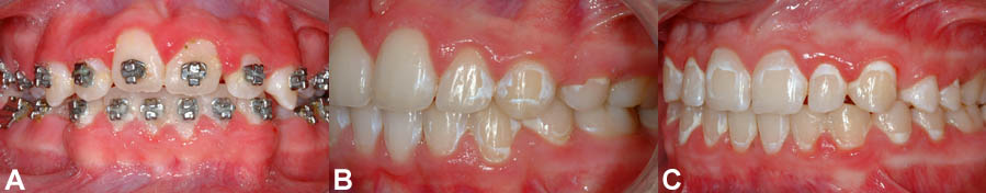 """(A) """"Non existent"""" oral hygiene causing an important accumulation of plaque. (B) Moderate decalcification stains affecting a few teeth. (C) Moderate to severe decalcification stains affecting all the teeth. These problems can be avoided with a good brushing technique."""