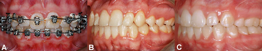 (A) Inadequate hygiene causes accumulation of plaque and food debris. This causes gingival inflammation (redness) and tooth decalcification (stains). (B) Examples of light decalcification affecting a few teeth. (C) Moderate decalcification on certain teeth.