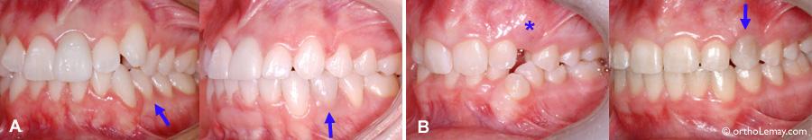 DÉcoloration de dents qui deviennent plus sobre (grise) pendant un traitement d'orthodontie