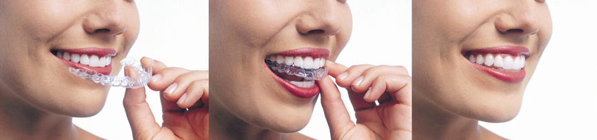 Invisalign aligners aligneurs coquilles transparentes orthodontistes Lemay