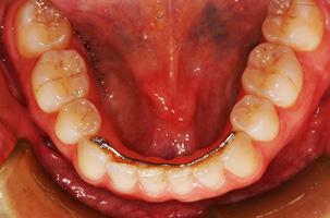 Appareil de rétention lingual orthodontique en bouche depuis 25 ans.