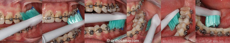 When you brush, clean each tooth surface, go around the brackets and brush behind the wires.