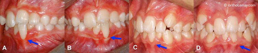 Amélioration du niveau de gencive avec l'orthodontie
