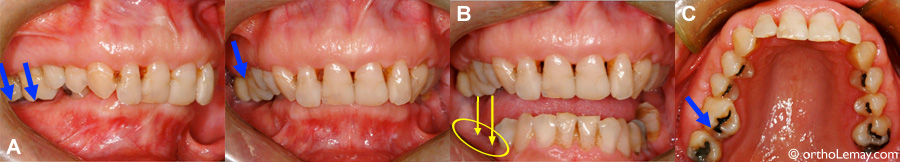 Over eruption of teeth following the loss of molars.