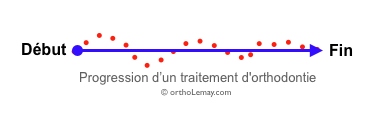 Progression d'un traitement d'orthodontie ligne droite
