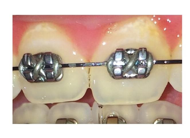 Décalcification dentaire causée par l'accumulation de plaque dentaire sur le bord de la gencive pendant un traitement d'orthodontie.