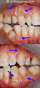 Severe dental wearing due to excessive brushing