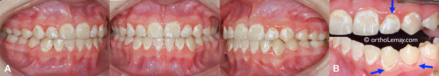 Bad dental hygiene, decalcification and dental carie after an orthodontic treatment.