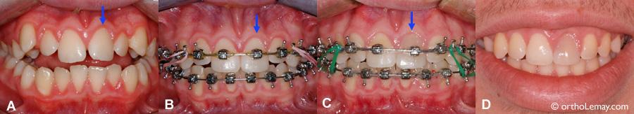 L'orthodontie ne cause pas de dévitalisation des dents