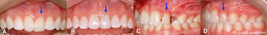Décoloration et dévitalisation de dents pendant l'orthodontie