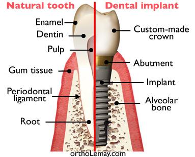 Comparison between a natural tooth and a dental implant.