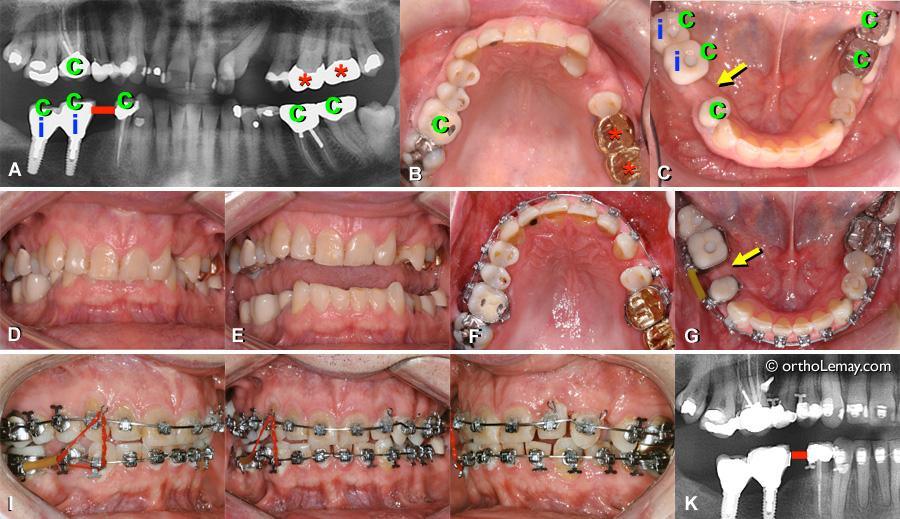Orthodontie inter-disciplinnaire; implant dentaire, couronnes, traitement de canal , fermeture d'espace, classe 2.