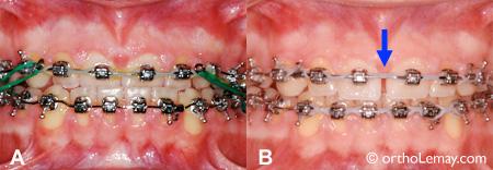 Ouverture d'espace, diastème apparaissant en déplaçant les dents en orthodontie