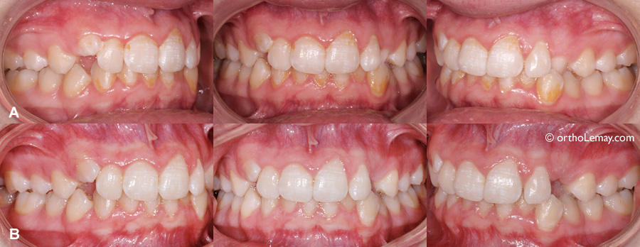Improvement of oral hygiene after a few weeks of brushing with a good technique.