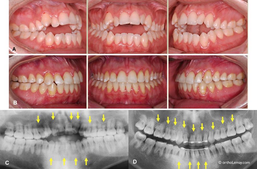 Résorption radiculaire (rhisalyze) et béance antérieure sévère traitée en orthodontie