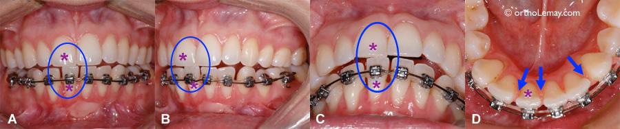 Traumatisme occlusal entre des incisives ce qui cause de la mobilité, déplacement dentaires, espaces et douleur.