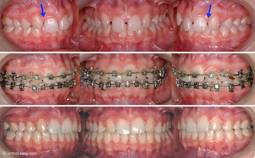 The upper canines were modified and brought closer to close the anterior spaces and thus replace the missing lateral incisors (arrows). This approach avoids having to use bridges, implants, etc. to replace the lateral incisors.