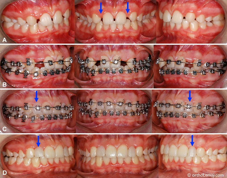 """(A) Both upper lateral incisors are missing (anodontia) (arrows). (B) Opening of the spaces for the lateral incisors orthodontically to eventually replace them by implants. (C) During the treatment, with artificial teeth added on the """"braces"""" for improved esthetics. (D) At the end of the treatment, teeth are added to maintain the width of the space until implants and final crowns are installed. The esthetics of these crowns will be better than the temporary teeth in place."""