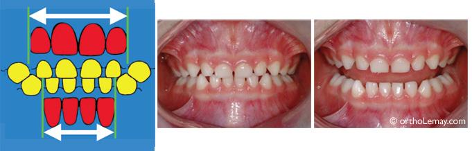 Espace de Beaume entre les dents temporaires.