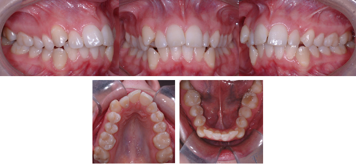 Encombrement dentaire chez un jeune adulte (22 ans)