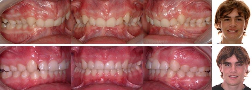 Les corrections orthodontiques ont permisde dégager les dents inférieures et d'en changer l'inclinaison. La fonction s'en trouve améliorée.