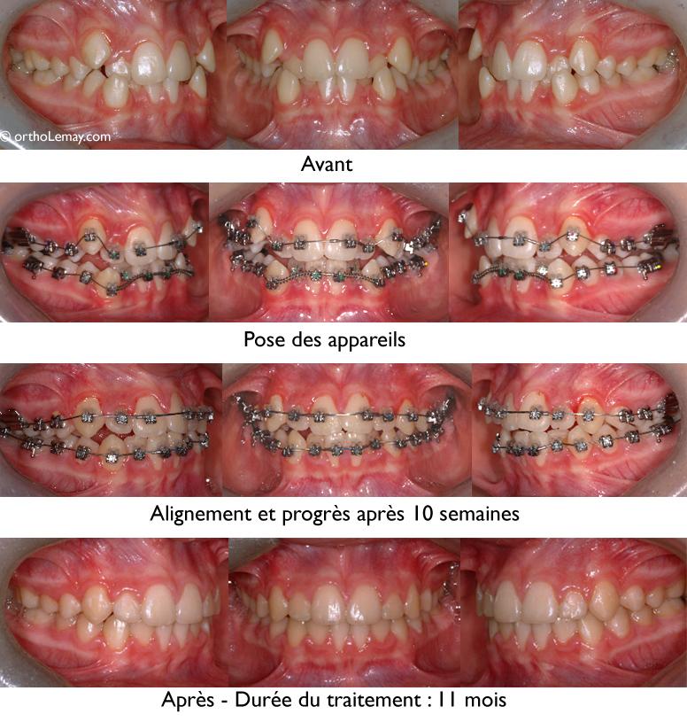 Correction d'une malocclusion avec chevauchement dentaire important en moins d'un an et sans extractions