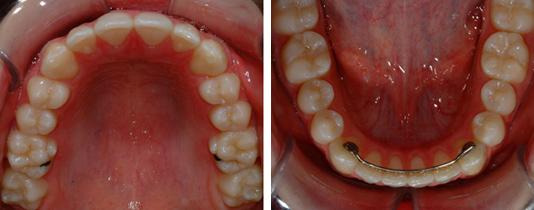 Vue en plongée des arcades dentaires supérieure et inférieure (avec fil de rétention) démontrant un alignement dentaire idéal