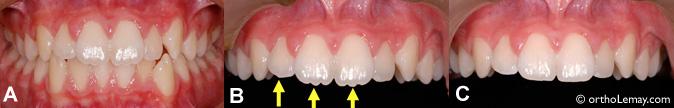 Dentelle dentaire, irrégularités du bord incisif et polissage de la dent.