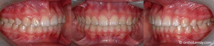 Occlusion et dentition normales traitées en orthodontie à Sherbrooke