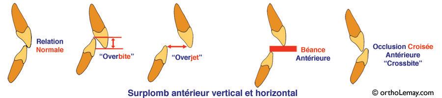overbite, overjet, terminologie dentaire utilisée pour décrire les dents antérieures.