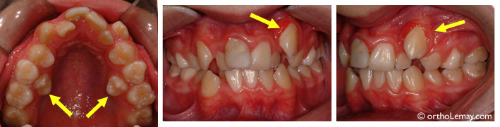 Manque d'espace, chevauchement dentaire, éruption ectopique de prémolaires (au palais) et d'une canine chez un jeune de 14 ans.