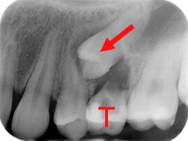 Prémolaire incluse (flèche) se dirigeant sous une autre prémolaire et causant de l'usure de la racine (résorption). L'extraction précoce de la molaire temporaire (T) aurait pu aider à prévenir cette condition.