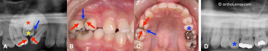 Dents ankylosées et submergées suite à une mauvaise supervision pendant l'éruption dentaire.