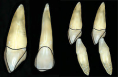 If a canine replaces a lateral incisor, its crown must be reshaped or modified so it looks as much as possible like a lateral incisor