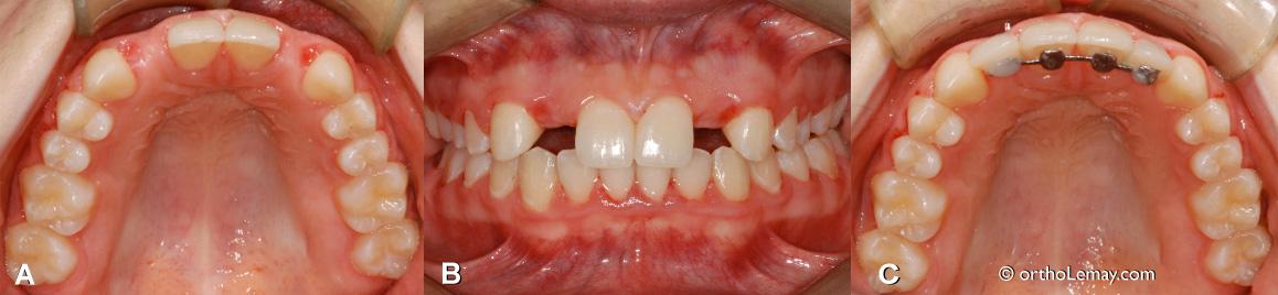 Attelles de rétention ou contention utilisées pour supporter des dents postiches dans un cas d'anodontie d'incisives latérales supérieures.