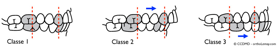 DIagramme de classification d'Angle des malocclusions dentaires