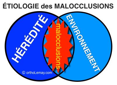 L'étiologie ou la cause des malocclusions dentaire est multiple. Les causes principales sont l'hérédité et l'environnement
