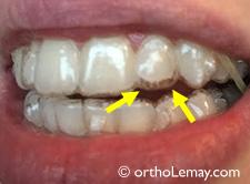 Invisalign tracking off , inadequate aligner fit. Mauvais ajsutement des coquilles Invisalign sur une dent.