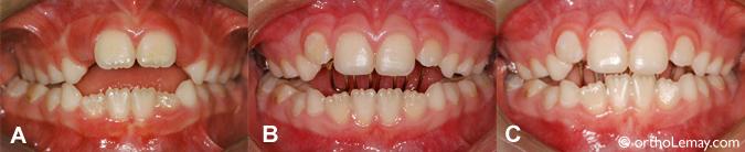 tongue crib, écran oral; appareil orthodontique utilisé pour contrôler le pouce et la langue