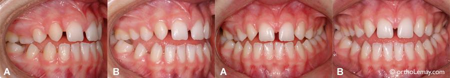Effet de la langue sur une béance antérieure