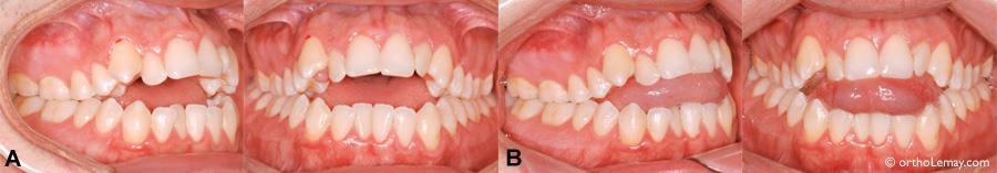 malocclusion dentaire béance antérieure et pressin de la langue