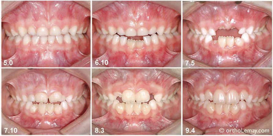 Étapes du développement dentaire relativement normal chez une fille entre l'âge de 5 et 10 ans. À mesure que les incisives permanentes sortent, il y a moins d'espace pour que la langue se place entre les dents antérieures.