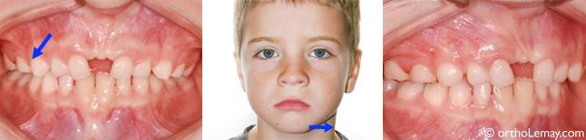 Correction d'une déviation mandibulaire et d'une occlusion croisée en orthodontie