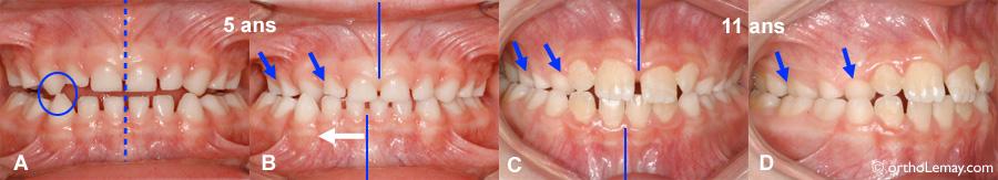 Une occlusion croisée (crossbite) ne se corrigera pas sans intervention orthodontique