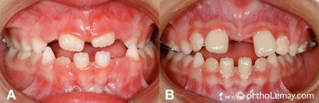 Ouverture d'espace dentaire pendant l'expansion maxillaire rapide.