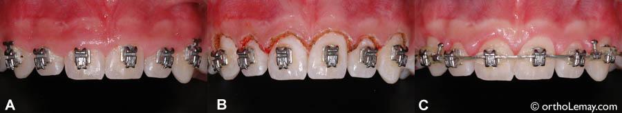 (A) Niveau de gencive bas, recouvrant la dent jusqu'au niveau des boîtiers et donnant l'apparence de dents courtes. (B) Immédiatement après la gingivectomie. (C) Guérison après 10 jours. Il peut parfois être nécessaire de faire une révision pour améliorer le contour après quelque temps.