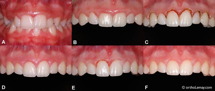 """A) Condition initiale, avant le traitement d'orthodontie; les dents sont d'apparence """"carrées"""" et recouvertes de gencive.  (B) Fin de l'orthodontie; hyperplasie gingivale (excès de gencive toujours présent) et dents d'apparence courte. (C)"""" Immédiatement après la gingivectomie au laser. (D) Guérison après 7 semaines. (E) Révision pour allonger davantage une centrale. (F) Résultat final; couronnes des dents mieux proportionnées et plus esthétiques."""