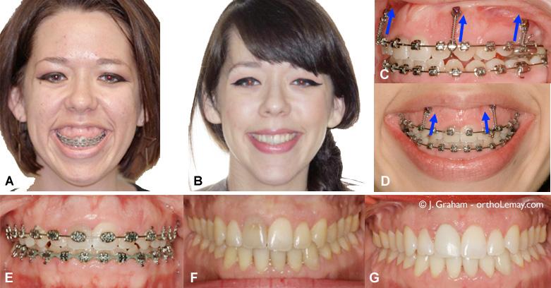Correction d'un sourire gingival sévère en orthodontie avec des mini-vis d'ancrage temporaire et sans chirurgie. Par Dr John Graham