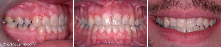 Une chirurgie a permis de diminuer la gencive apparente et l'orthodontie a permis de replacer les dents (4 dents ont été extraites)