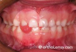 Déglutition atypique infantile, malocclusion dentaire, orthodontie